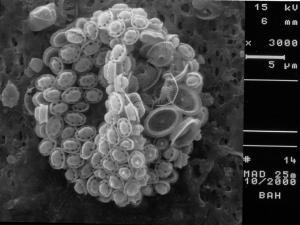 Syracosphaera pulchra HOL pirus type