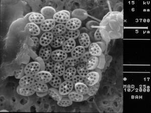 cf. Calyptrolithina multipora