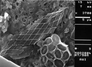Calciosolenia murrayi, Syracosphaera sp. (cf. tumularis)