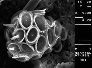 Syracosphaera pulchra
