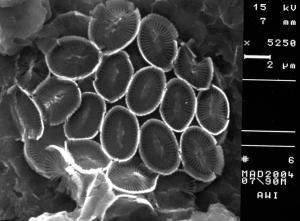 Syracosphaera tumularis