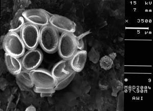 Syracosphaera pulchra, Gephyrocapsa ericsonii