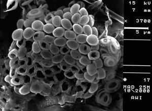 Syracosphaera pulchra HOL oblonga type, Emiliania huxleyi
