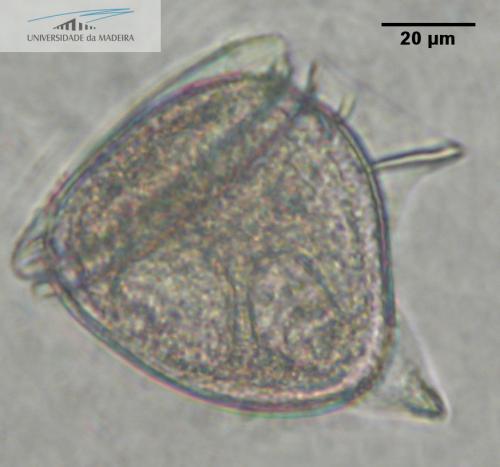 Dinophysis (Phalacroma) doryphora
