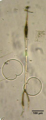 Amphisolenia bifurcata; Pyrophacus