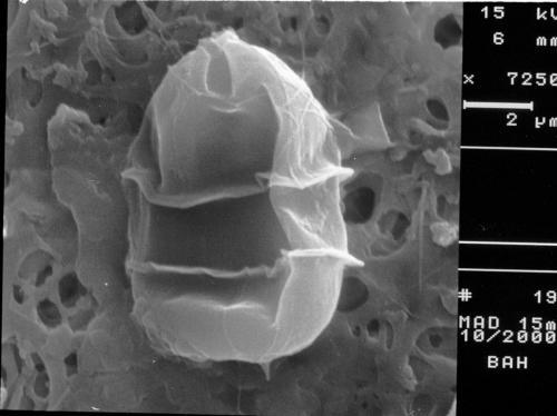 Azadinium cf. dexteroporum